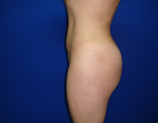 Buttocks augmentation Mexico