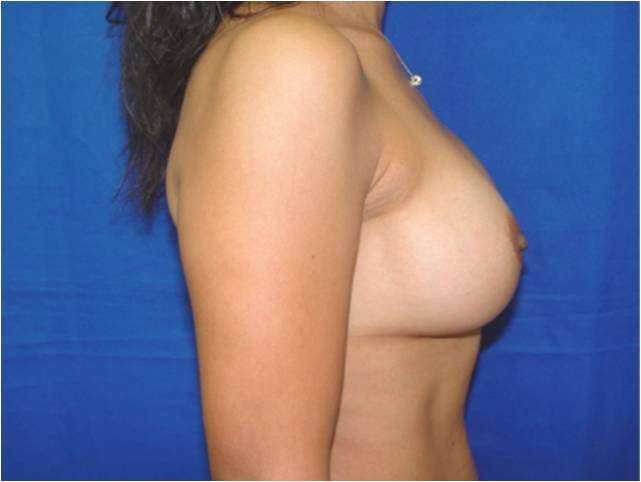 anatomical breast implants